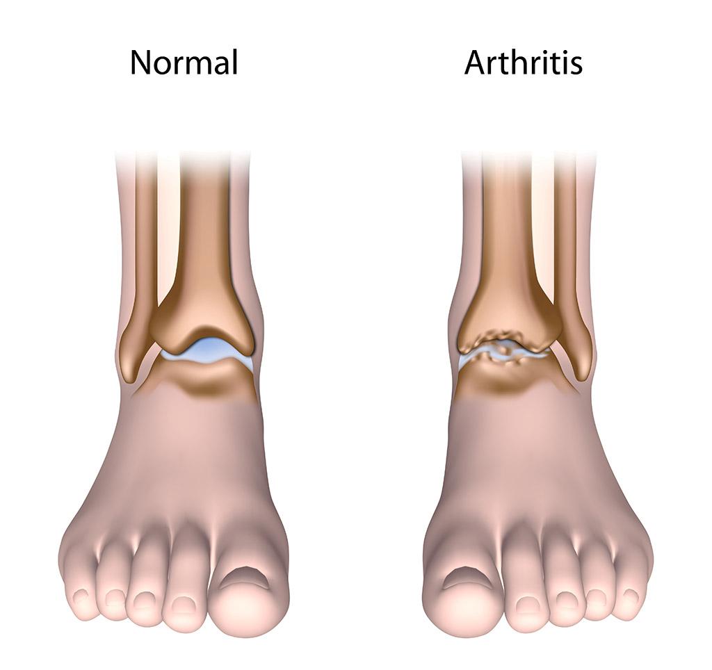 L'arthrose : existe-t-il un traitement ?
